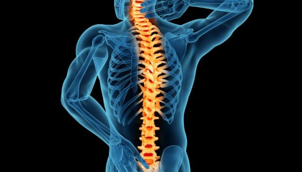 Chiropractor-spinal-stenosis
