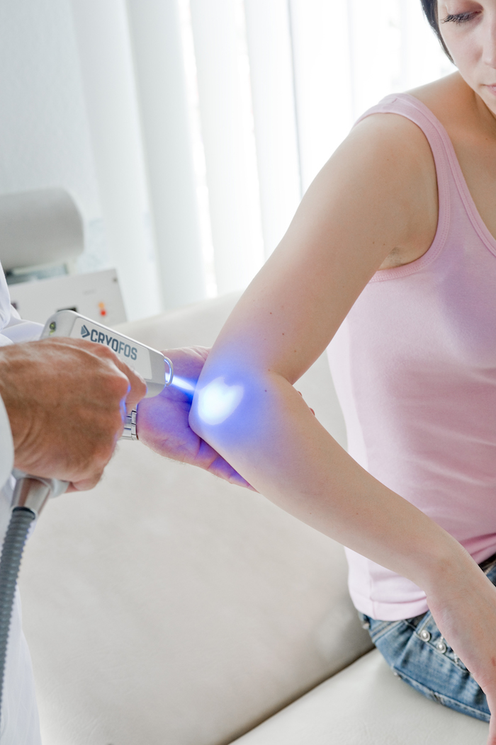Cryofos Cryotherapy for elbow pain.
